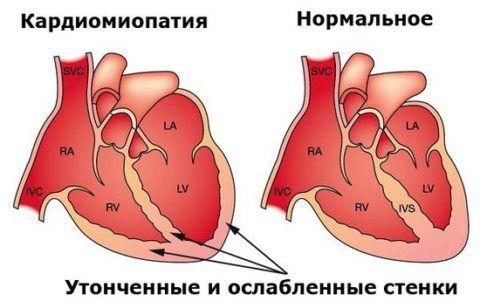 На фото здоровое сердца и сердце с ослабленной стенкой при кардиомиопатии.