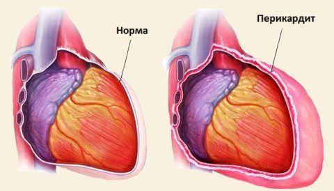 Перикардит обусловлен воспалением серозной оболочки важного органа.
