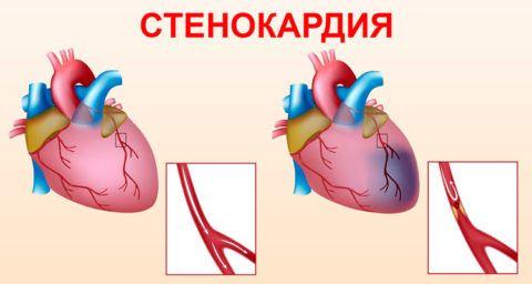 При стенокардии происходит закупорка коронарной артерии тромбами или атеросклеротической бляшкой.