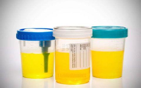 Принимая препарат, желательно сдавать контрольный анализ мочи