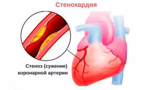 Сужение внутреннего просвета сосуда вызывает дефицит кислорода и признаки стенокардии.