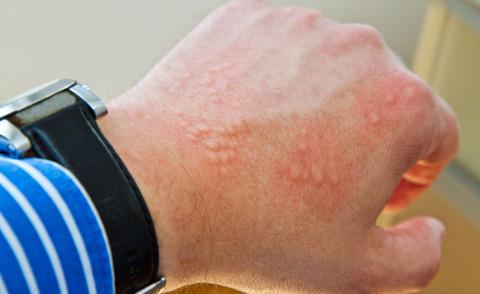 У 80% людей индивидуальная лекарственная непереносимость «проявляется» на коже