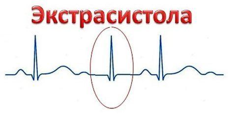 Внеочередное атипичное сокращение сердечной мышцы