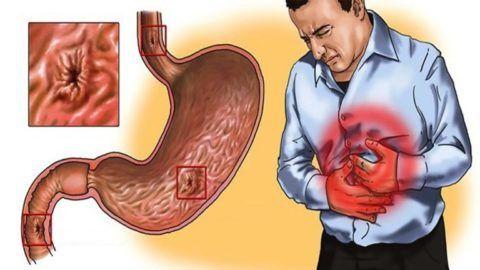 Язвенная болезнь желудка провоцирует резкие боли, иррадиирующие в область левого подреберья.