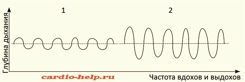 Спирограммы нормального дыхания (1) и гипервентиляционного дыхания Куссмауля (2)