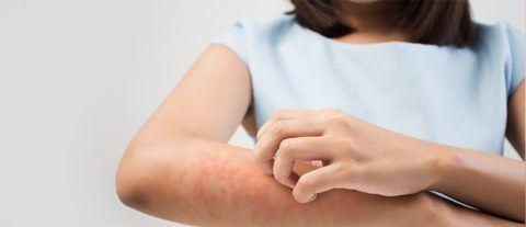 Довольно часто бета-блокаторы вызывают зуд кожных покровов и обострения заболеваний кожи