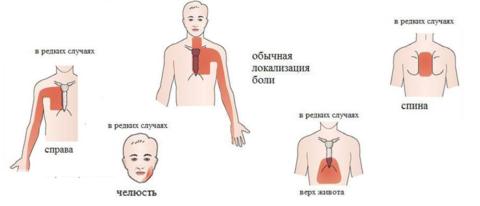 Локализация сердечных болей при инфаркте и стенокардии