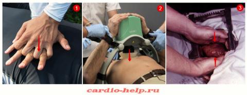 Надавливания руками на грудину (1), аппарат для непрямого массажа сердца (2), внутренний массаж сердца (3)