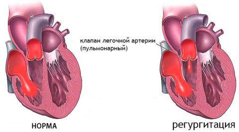 Недостаточность клапана при регуритации легочной артерии
