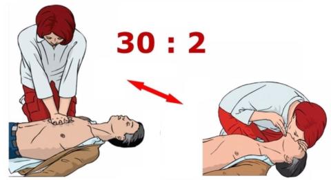 Оптимальное соотношение между массажем сердца и пассивным дыханием