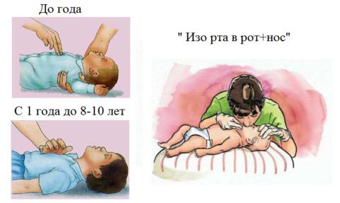 Отличия техники выполнения ИМС и ИВЛ у грудных и маленьких детей от взрослых