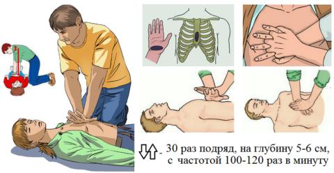 Правильная техника закрытого массажа сердца пострадавшему, старше 8-летнего возраста