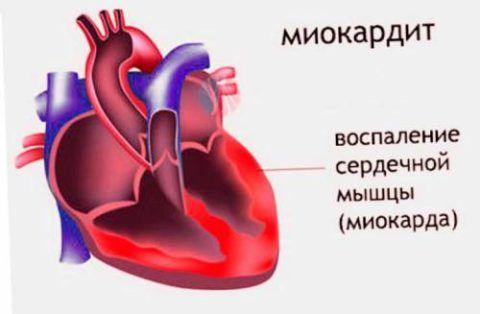 При воспалении перикарда раздражаются нервные окончания перикардиальных листков и тогда от нервов сердце колет, боль: резкая и режущая усиливается при дыхании, изменении позы. Она может ощущаться в руке, правой половине груди, может сочетаться с лихорадкой, сухим кашлем и усиленной слабостью.