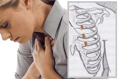 Реберный перихондрит – синдром Титце
