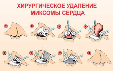 Этапы операции по удалению миксомы