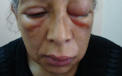 Отёк Квинке – крайне опасное осложнение, которое может привести к коматозной потере сознания и смерти