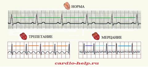 Схематические ЭКГ у здорового сердца и при разных видах фибрилляции его предсердий