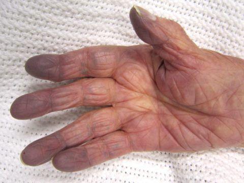 Цианоз пальцев рук