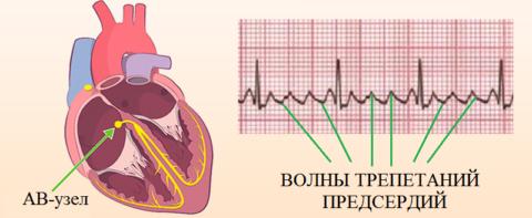 За скорость передачи импульсов сокращения отвечает предсердно-желудочковый АВ-узел