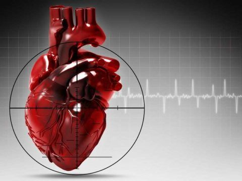 ИБС – причина инфаркта миокарда.