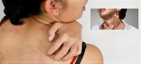 Как и любое другое лекарство Рамилонг может стать причиной аллергических проявлений