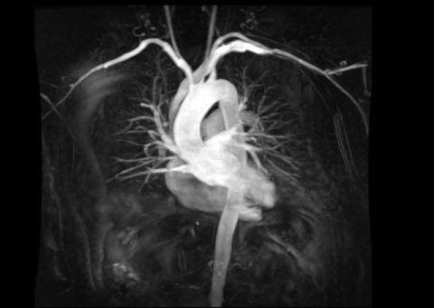 МРТ сердца – более дорогая, но высокоточная альтернатива рентгену сердца