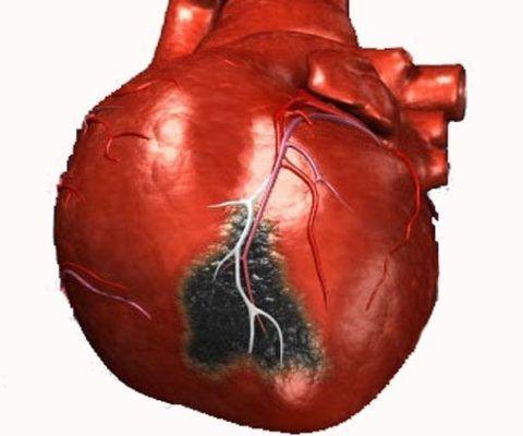 На фото пораженная некрозом область сердца при инфаркте миокарда.