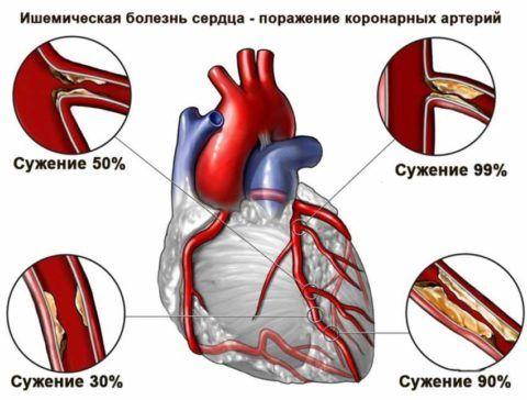 Наличие ИБС – одно из показаний для проведения рентгенографии сердца
