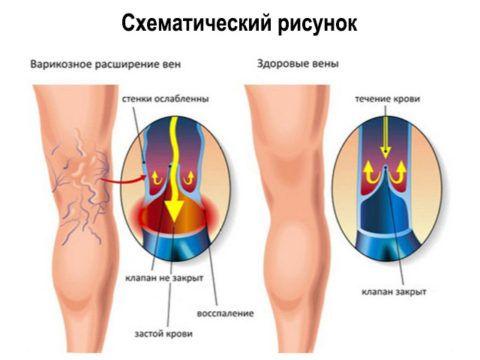Нарушение работы венозных клапанов
