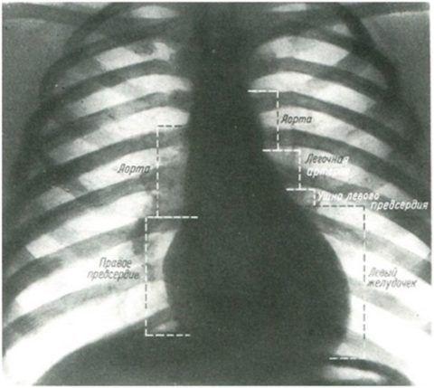 Отделы сердца на рентгене