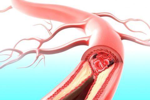 Патологии сосудистой ткани вызывают ангинозные боли.