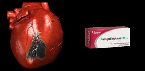 Рамиприл советуют принимать всем, кто перенёс инфаркт миокарда, начиная с 5-го дня