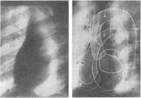 Рентгенограмма (а) и схема (б) сердца и крупных артерий (в левой передней косой проекции)