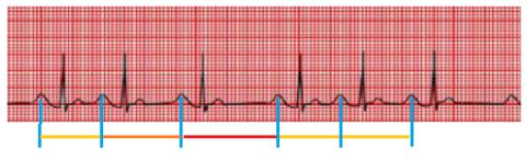 Синусовая аритмия – это нерегулярность биения сердца из-за изменения деятельности синусового узла