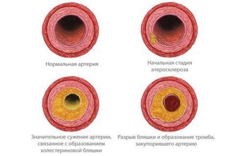 Атеросклеротические поражения артерий