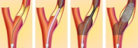 Эндоваскулярное стентирование сонной артерии