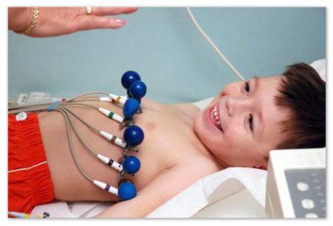 МАРС – это аномалии, которое не являются заболеванием и проходят по мере взросления ребенка