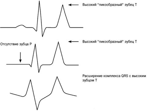 Показатели ЭКГ характерные для гиперкалимемия