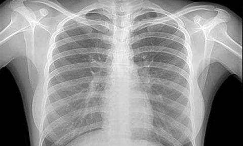 Рентген груди