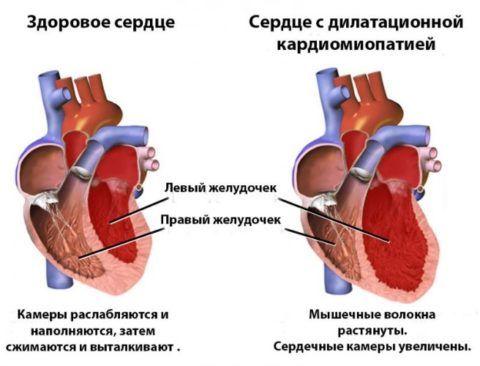 Изменения в сердце при кардиопатии (кардиомиопатии)