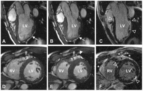 КТ или МР-томография