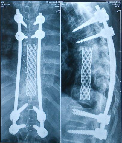 Наличие металла или имплантов