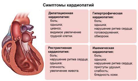 Признаки основных видов кардиопатий