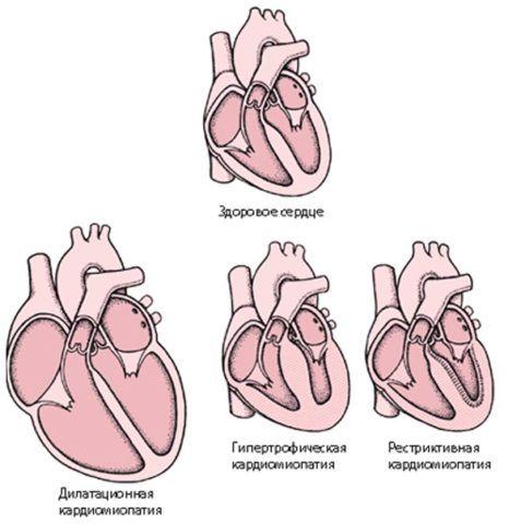 Схематическое изображение здорового и больного сердца