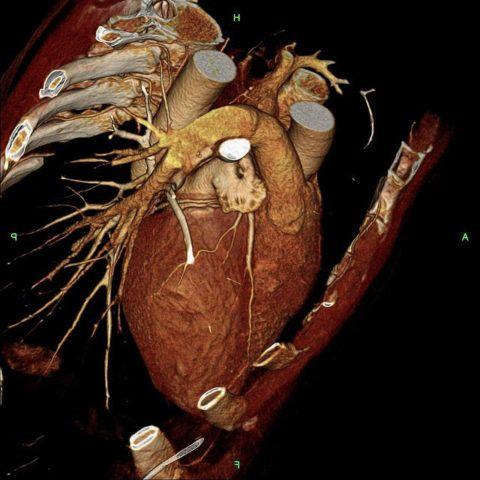 Трехмерный снимок сердца сделанный при помощи томографии