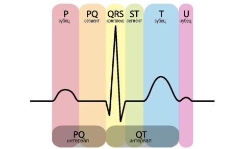 ЭКГ-схема одного сокращения-расслабления сердца при LGL-аномалии