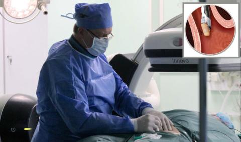 РЧА выполняется с помощью эндоскопа, который вводится через бедренную или плечевую артерию.