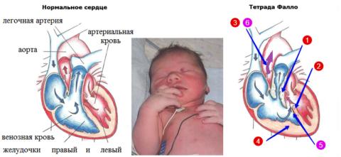 Tetrad («красная» нумерация) аномалий сердца, типичных для синюшной болезни