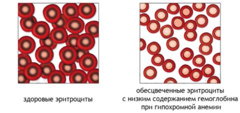 При гипохромазии (гипохромии), кол-во клеток не изменяется, уменьшается содержание в них HGB