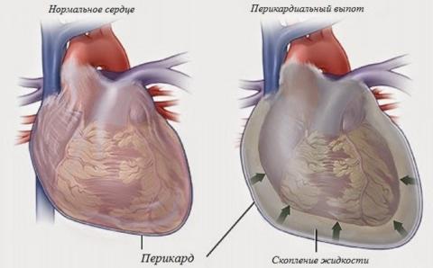Скопление жидкости при гидроперикарде